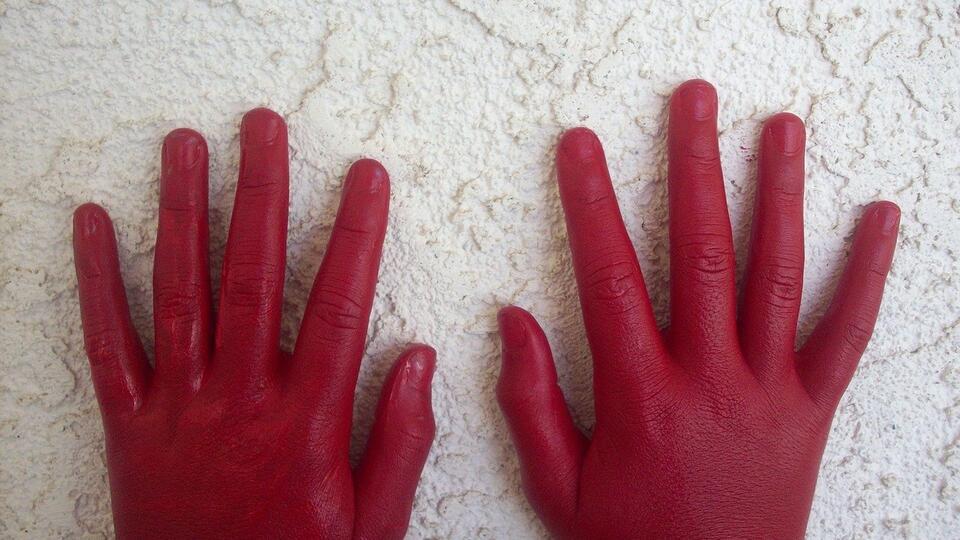 Красные руки назвали симптомом опасной болезни печени