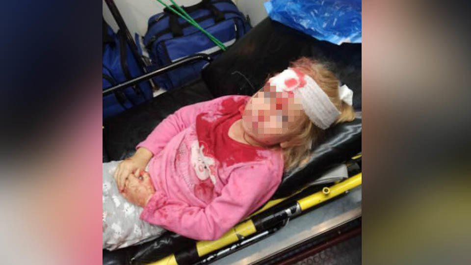 На акции протеста в Белоруссии пострадал пятилетний ребенок