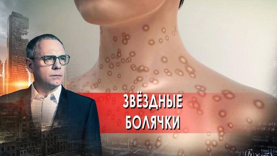 Звёздные болячки. Самые шокирующие гипотезы с Игорем Прокопенко (09.09.2021).