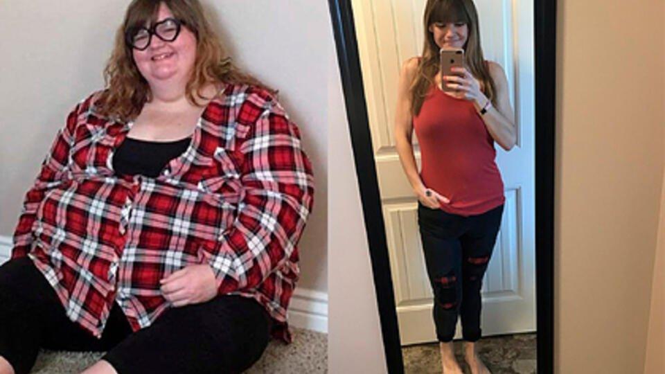 Девушка рассказала о своей жизни после похудения на 123 кг