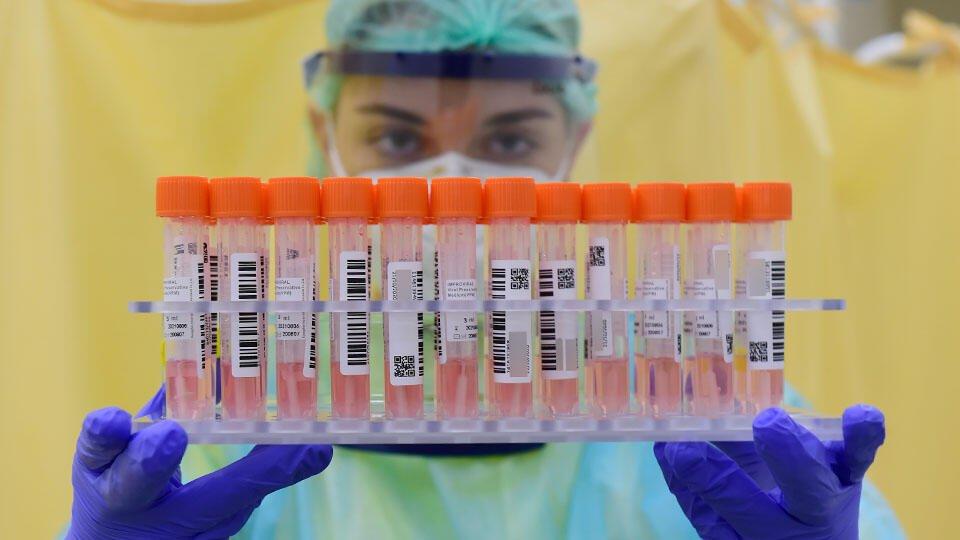 В России выявили 17 340 новых случаев коронавируса за сутки