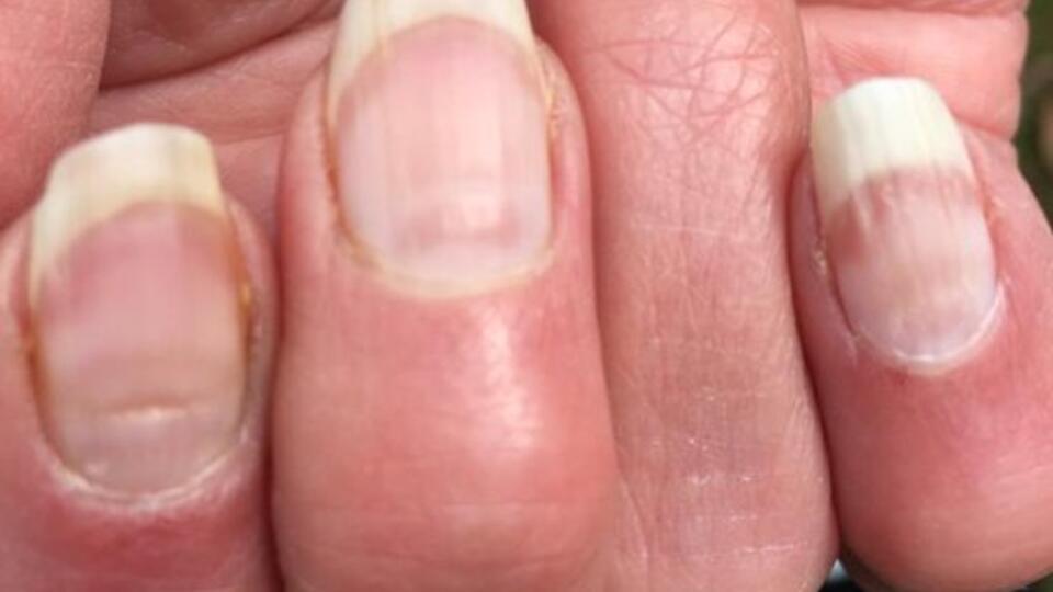 Британский профессор объяснил последствия ковидных ногтей