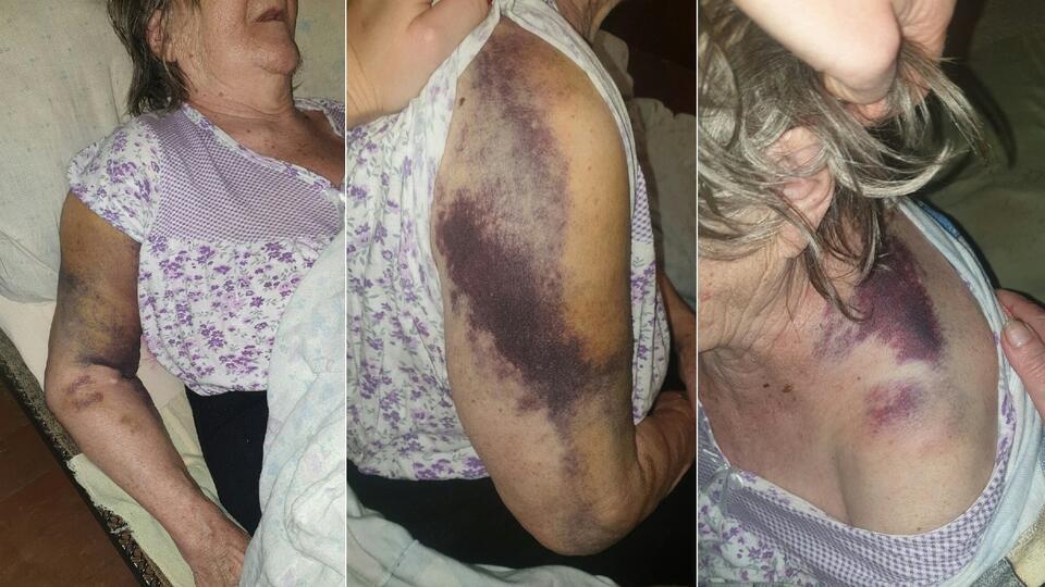 На Урале бабушка заявила, что ее били и привязывали в COVID-больнице