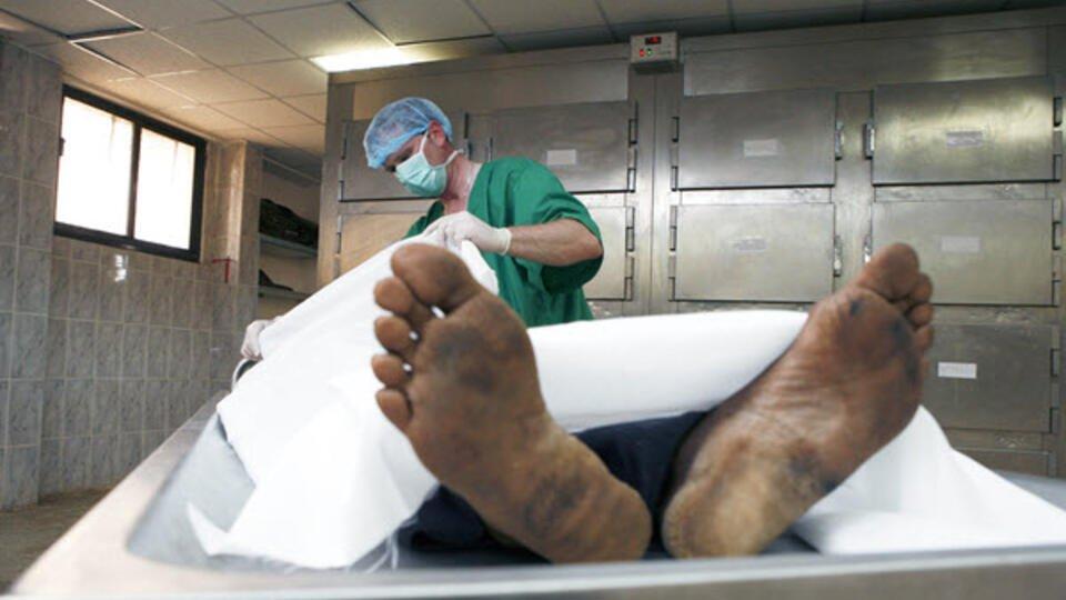 "Перепутали: врачи ""похоронили"" дедушку, который оказался живым"