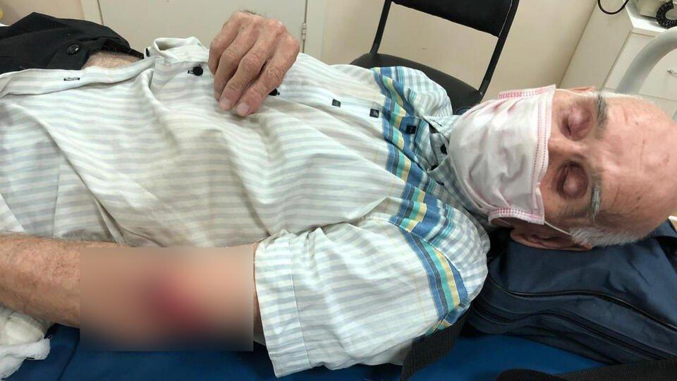 84-летний житель Уфы попал в больницу из-за наезда электросамокатчиков