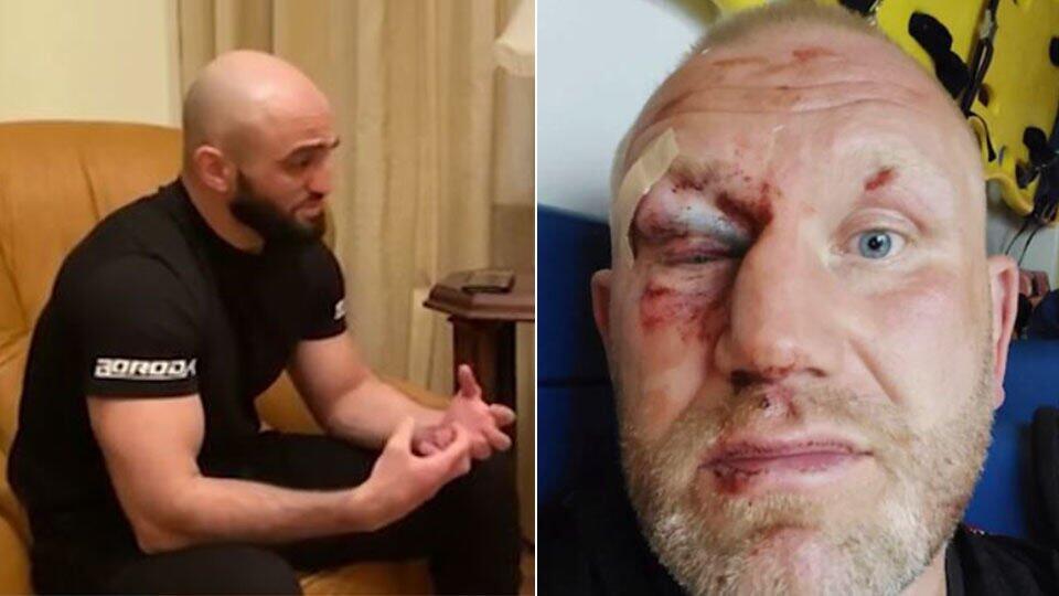 Яндиев ответил избитому им Харитонову:Я никогда никому не был должен